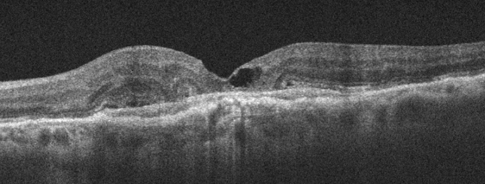 OCT of an 85-year-old with vision loss