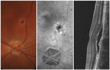 Ocular Histoplasmosis Syndrome (OHS) with Choroidal Neovascularization (CNV)