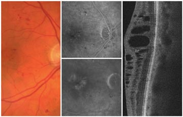 Nevus with Non-proliferative Retinopathy (NPDR)