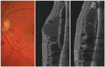 Non-proliferative Diabetic Retinopathy (NPDR) and Diabetic Macular Edema (DME).