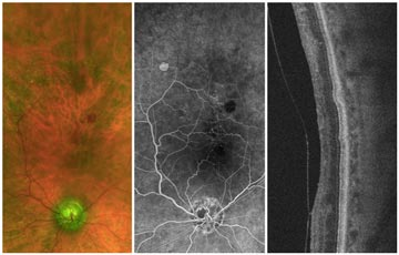 Central Retinal Vein Occlusion (CRVO) with Neovascular Glaucoma (NVG)