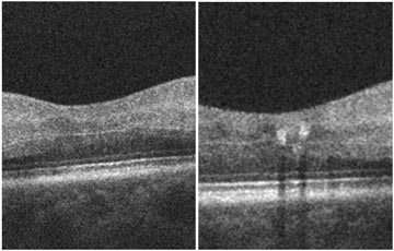 Central Retinal Artery Occlusion (CRAO)