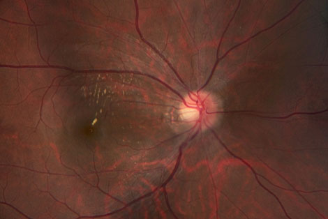 Hypertensive Retinopathy, COPE Approved Optometric CE